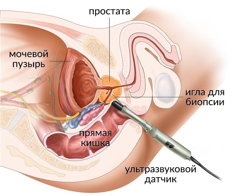 влияния простатита на эякуляцию